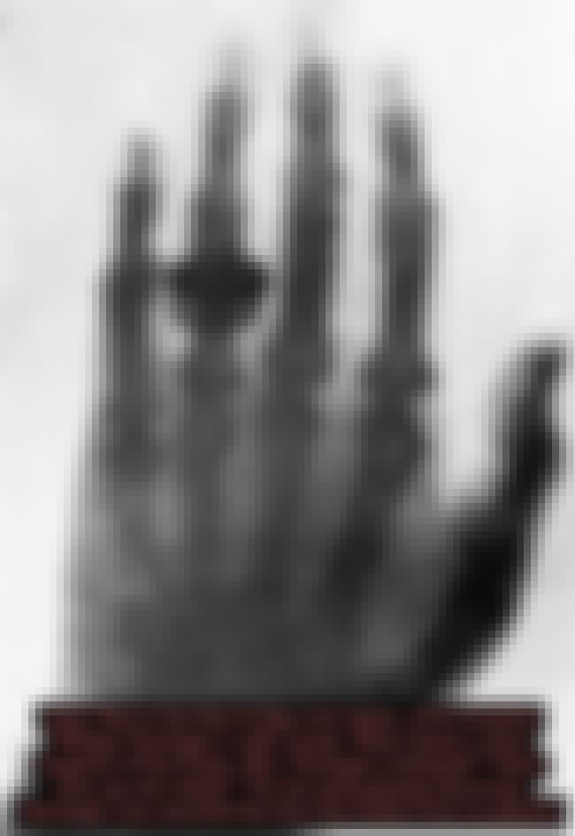 1896: The First X-Ray is listed (or ranked) 4 on the list 15 Stunning Photos of Rudimentary Medical Treatments Throughout History
