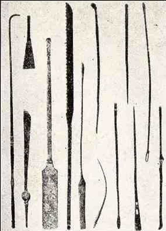 Dental Surgery Was Painf... is listed (or ranked) 2 on the list 10 Bizarre Facts About What Surgery Was Like In Ancient Egypt