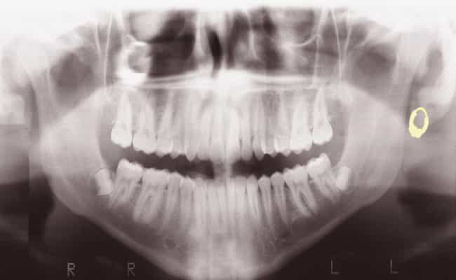 Using Dental X-Rays And ... is listed (or ranked) 2 on the list How Authorities Positively Identify Jane And John Does
