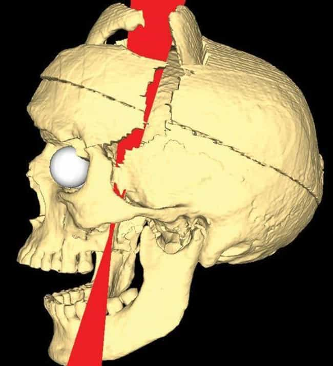 A Railroad Spike Passed Fully ... is listed (or ranked) 3 on the list Horrifying Facts About Phineas Gage, Whose Brain Was Impaled With An Iron Rod