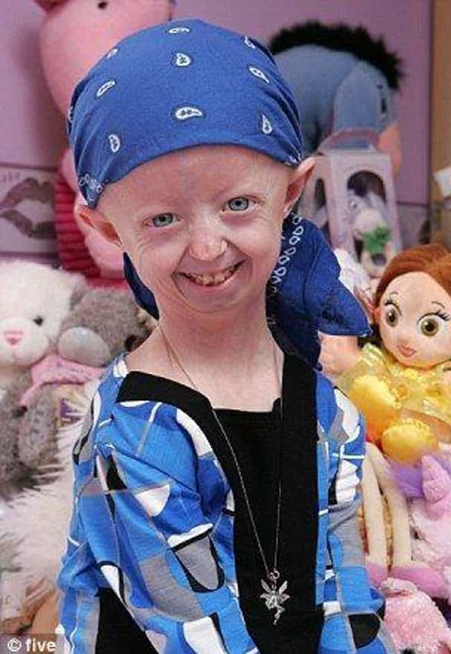 The Biggest Risk Is Prog... is listed (or ranked) 3 on the list What You Need To Know About Progeria, The Disease That Rapidly Ages Young Kids