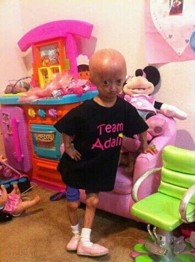 The Symptoms Mimic The Aging P... is listed (or ranked) 2 on the list What You Need To Know About Progeria, The Disease That Rapidly Ages Young Kids