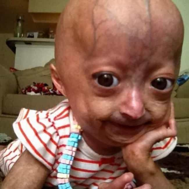 Life Expectancy For Prog... is listed (or ranked) 4 on the list What You Need To Know About Progeria, The Disease That Rapidly Ages Young Kids