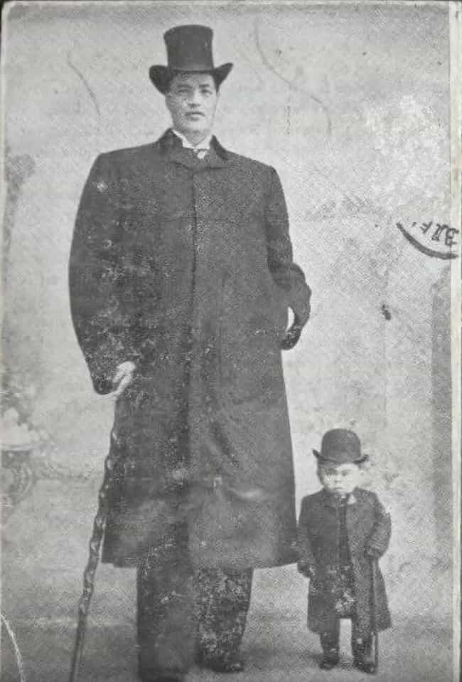 His Dwarfism Suddenly De... is listed (or ranked) 1 on the list The Bizarre Saga of Adam Rainer, the Only Person Ever To Be A Dwarf And A Giant