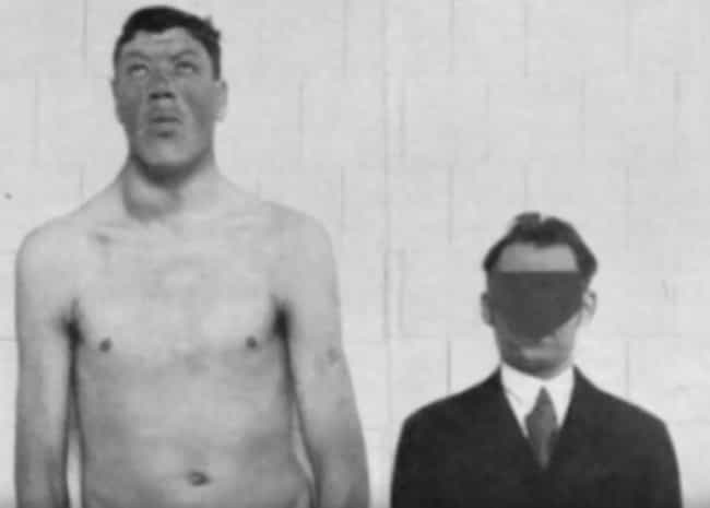 Doctors Attributed His R... is listed (or ranked) 2 on the list The Bizarre Saga of Adam Rainer, the Only Person Ever To Be A Dwarf And A Giant
