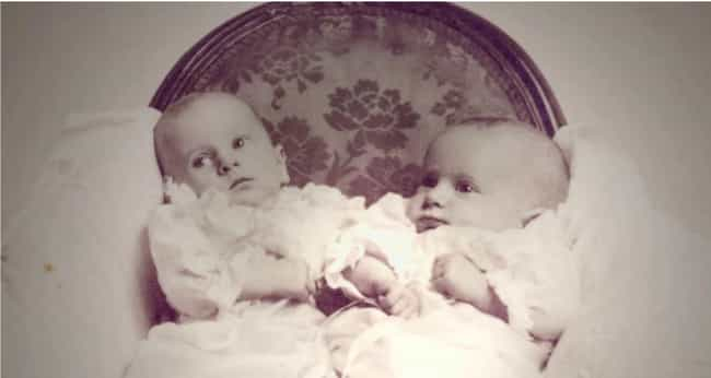 They Were Connected At The Hip... is listed (or ranked) 1 on the list These Conjoined Twins Probably Lived The Most Tragic Lives In Modern History