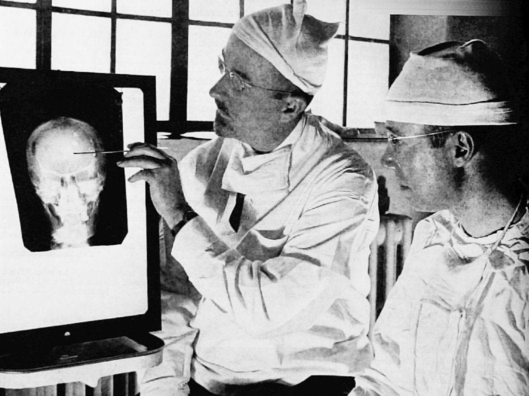 Random Things About Early Lobotomy, Surgeons Would Literally Pour Alcohol Onto Their Patients' Brains