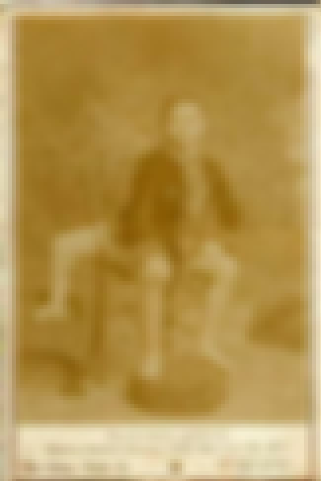 Though Young Frank Wanted It G... is listed (or ranked) 3 on the list These 19th Century Photos Of A Guy With 3 Legs Are Pretty Shocking