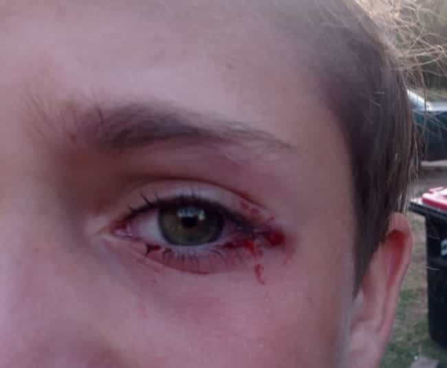 Child Nearly Loses Eye From Fi... is listed (or ranked) 1 on the list These Fidget Spinner Horror Stories May Sound Like A Joke, But They're 100% Real