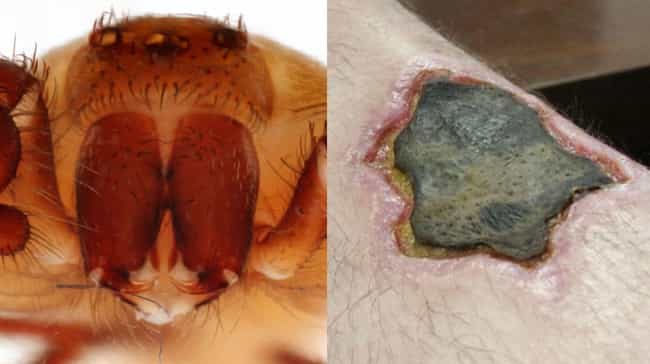 The Brown Recluse Spider Has V... is listed (or ranked) 2 on the list 10 Gruesome Wounds Inflicted By Venomous Animals That You Can't Look Away From