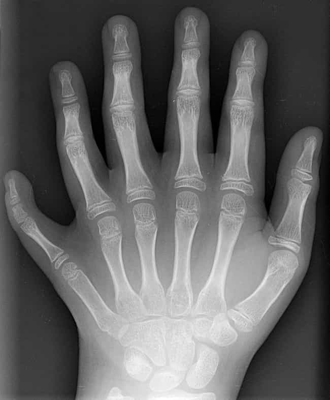 Polydactylism Is Somewhat Comm... is listed (or ranked) 3 on the list Meet The Da Silvas, The Brazilian Family Who Were All Born With 12 Fingers And Toes