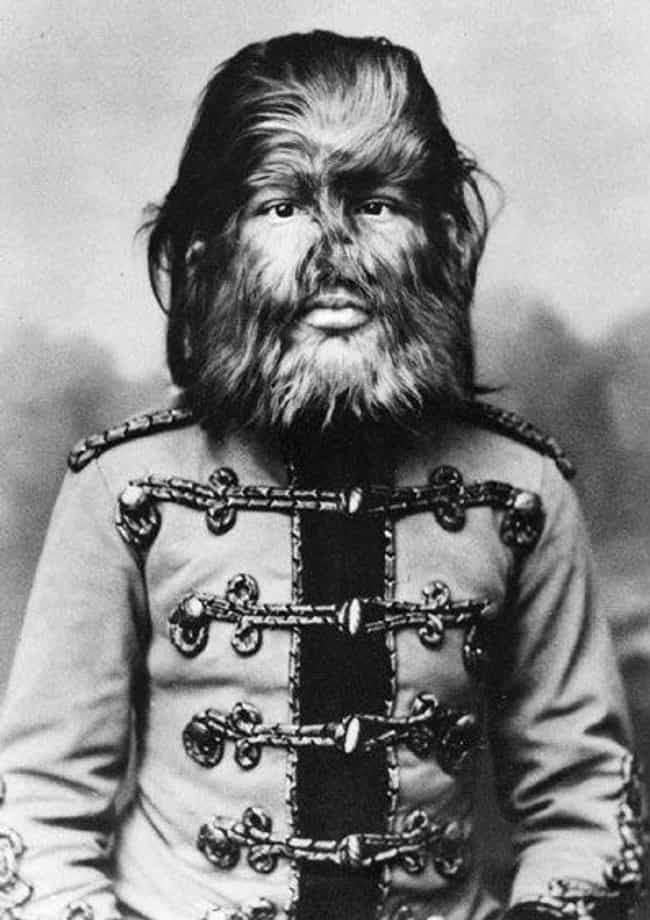 Feodor Jeftichew, Dog Boy is listed (or ranked) 3 on the list Every Single Human Attraction From P.T. Barnum's Freak Show