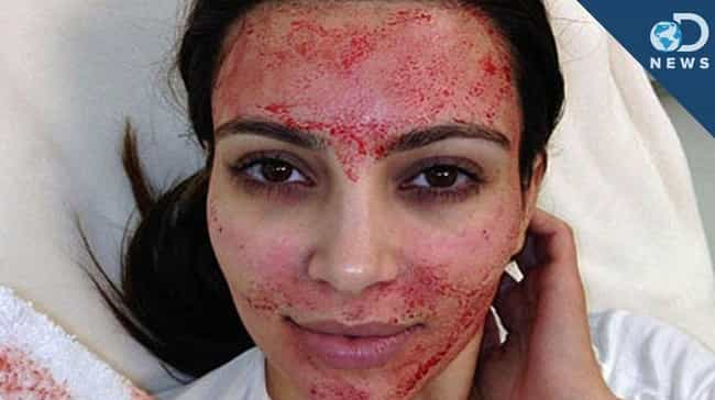 "Blood Cream - The Vampire'... is listed (or ranked) 4 on the list Ways To Make People ""Beautiful"" That Seem A Bit Extreme"