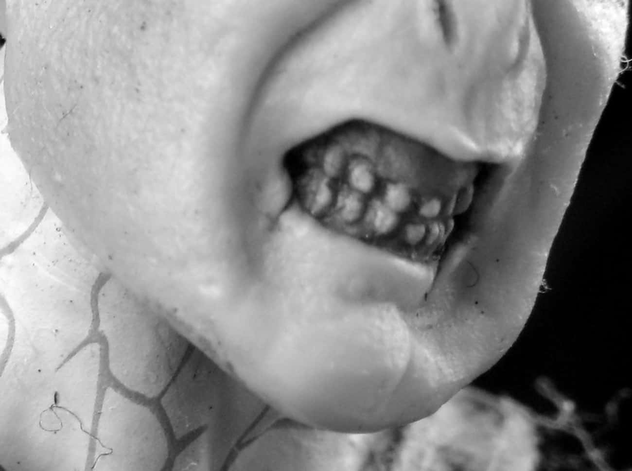Check The Teeth For Rapid Dent is listed (or ranked) 4 on the list Signs Someone You Know Might Be Possessed By A Demonic Presence