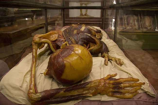 There Was A Body Shortage In 1... is listed (or ranked) 2 on the list These Grotesque 18th Century Wax Models Were Made From Real Corpses