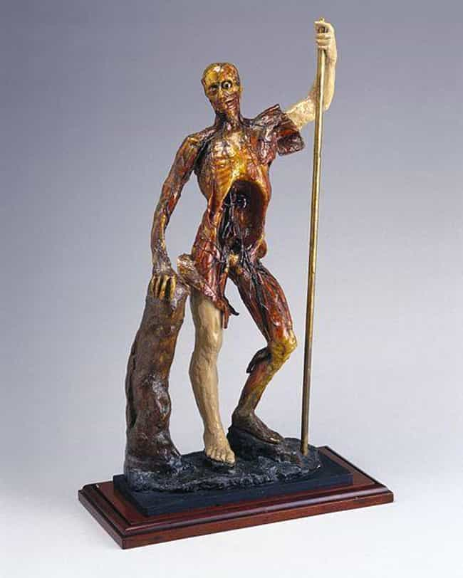 The Incredibly Realistic Wax M... is listed (or ranked) 1 on the list These Grotesque 18th Century Wax Models Were Made From Real Corpses