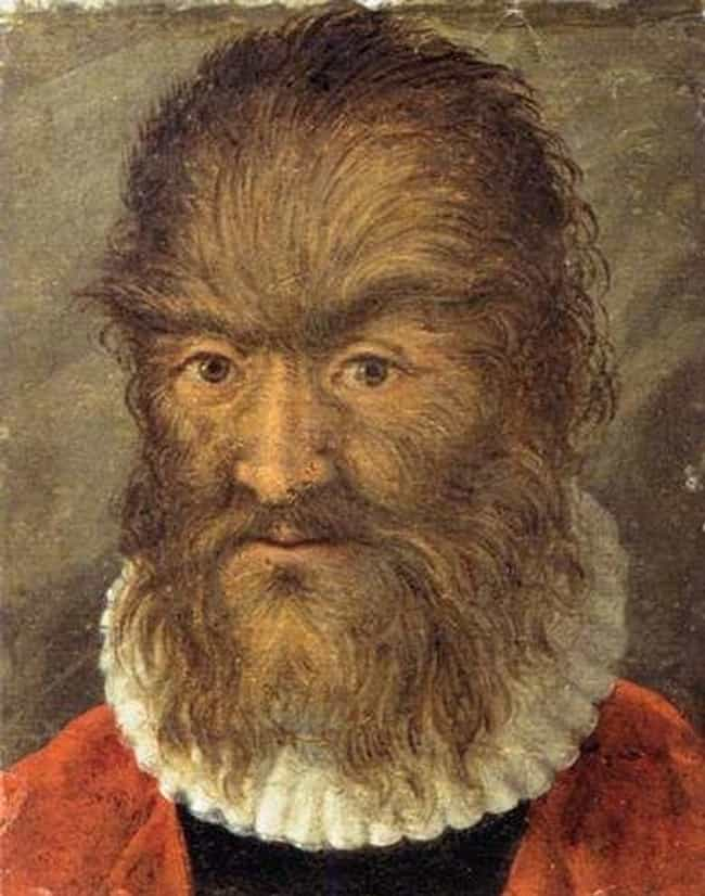Petrus was afflicted with hypertrichosis