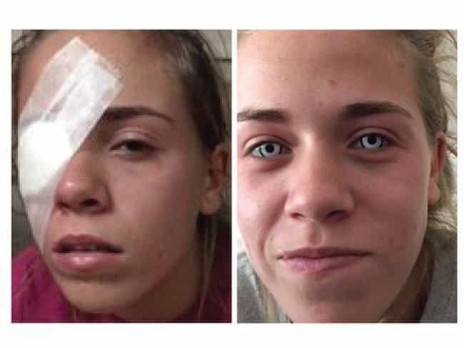 Leah Carpenter Suffered Irrepa... is listed (or ranked) 1 on the list This Teenager Might Go Blind After Using Faulty Halloween Contacts