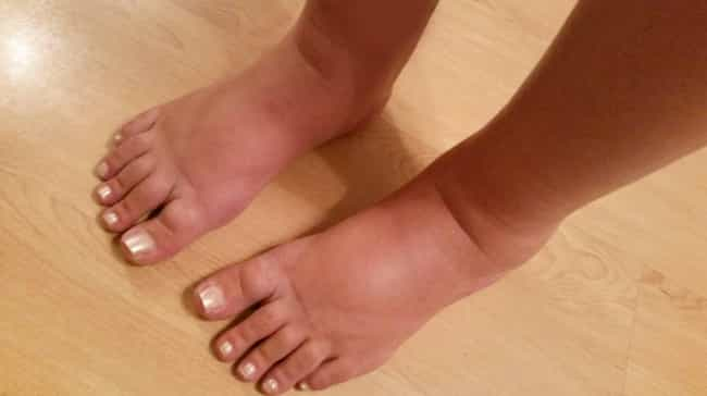 Swollen Feet Could Show Heart ... is listed (or ranked) 1 on the list 12 Things Your Body Is Telling You (That You Probably Never Realized)