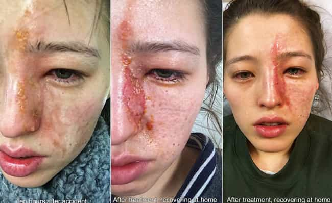 What She Thought Was A First-D... is listed (or ranked) 3 on the list You'll Throw Away Your Essential Oils After Seeing What Happened To This Woman