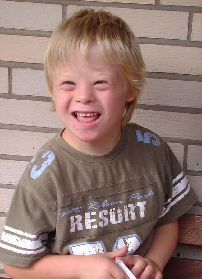 What Is Down Syndrome? ... is listed (or ranked) 3 on the list Down Syndrome Is Nearly Eliminated In Iceland And The Internet Has Feelings