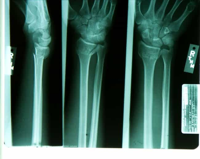 Some People's Bones Just D... is listed (or ranked) 1 on the list Rare Genetic Features That You Probably Don't Have