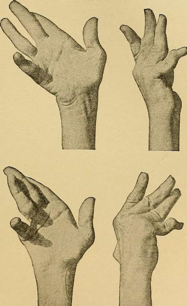 One Woman Started Undressing H... is listed (or ranked) 2 on the list Alien Hand Syndrome Basically Gives Your Hand A Mind Of Its Own - And It Might Try To Kill You