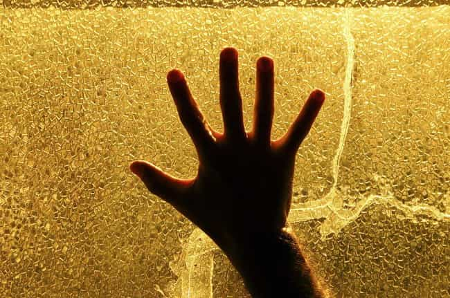 There Is No Known Treatment Fo... is listed (or ranked) 4 on the list Alien Hand Syndrome Basically Gives Your Hand A Mind Of Its Own - And It Might Try To Kill You