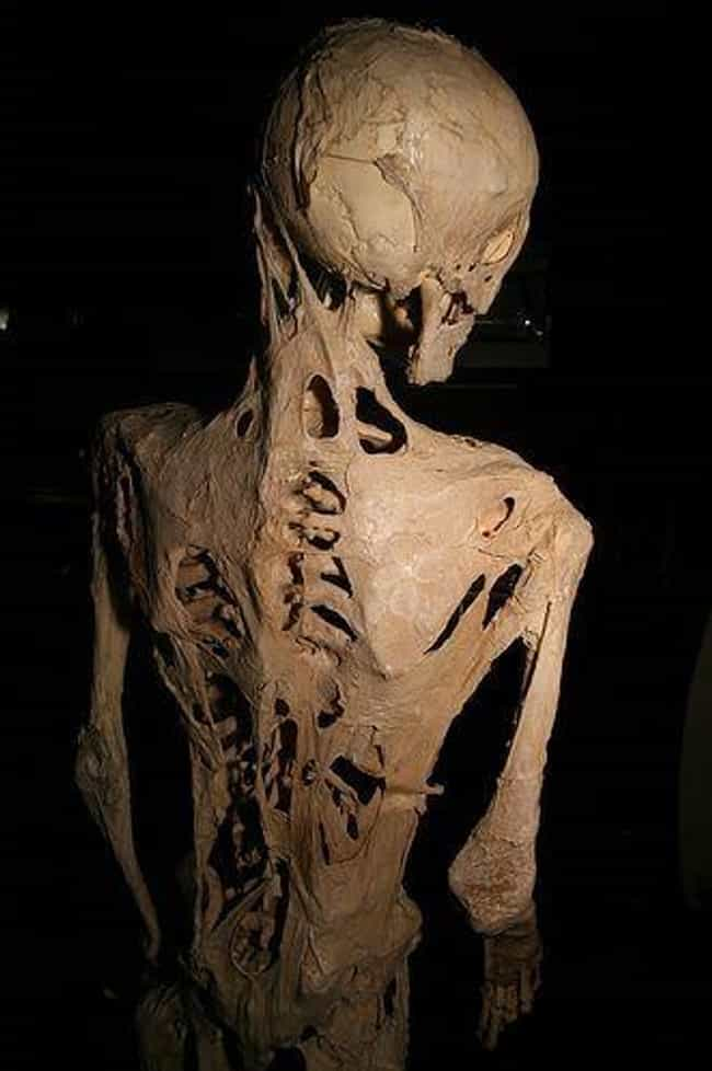It Turns Soft Tissue Into Bone... is listed (or ranked) 1 on the list This Syndrome Will Slowly Turn You To 'Stone' - It's Rare, But Very Real