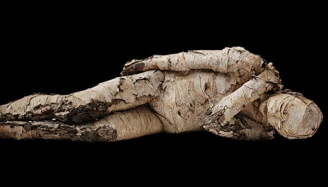 The Growths Can Lead To Skin C... is listed (or ranked) 4 on the list Tree Man Disease Is A Rare And Incurable Condition That Mutates The Skin Into Bark-Like Growths