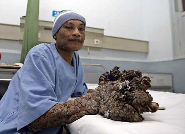 Dede Koswara Is One Of The Mos... is listed (or ranked) 2 on the list Tree Man Disease Is A Rare And Incurable Condition That Mutates The Skin Into Bark-Like Growths