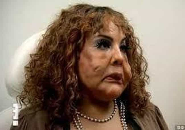 Rajee Had Tire Sealant And Cem... is listed (or ranked) 1 on the list The Worst Plastic Surgery Horror Stories From 'Botched'