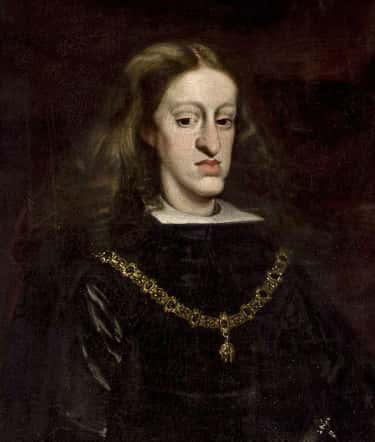 Most Of Charles's Health Issue is listed (or ranked) 1 on the list Charles II Of Spain's Health Problems Destroyed His Dynasty And Plunged Europe Into War