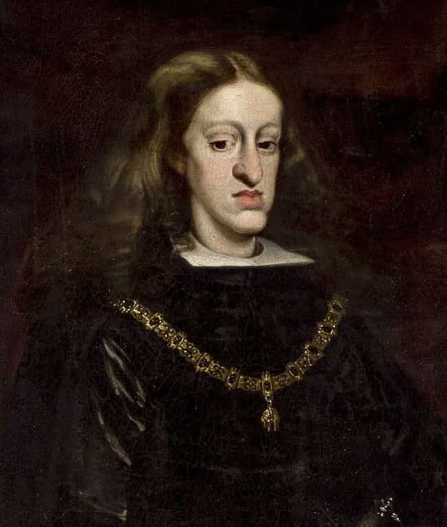Genetic Disorders Explai... is listed (or ranked) 3 on the list Charles II Of Spain Destroyed His Dynasty And Plunged Europe Into War, In Part Because He Was Inbred