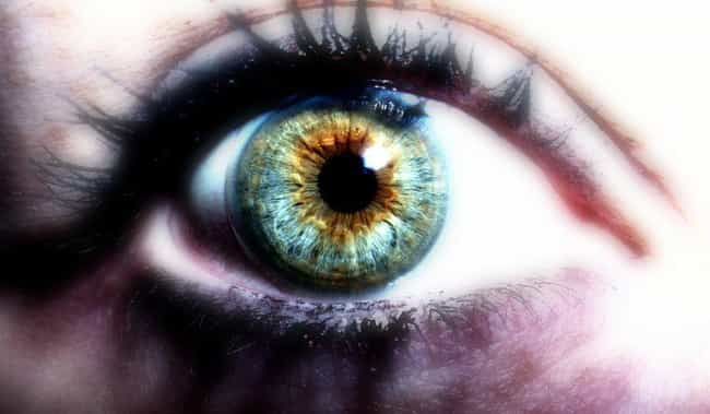 Everything You've Ever Wanted To Know About Heterochromia