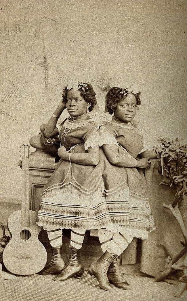 The Twins Shared A Pelvis And ... is listed (or ranked) 1 on the list Born Into Slavery, Died As Royal Entertainers: The Journey Of The McKoy Conjoined Twins