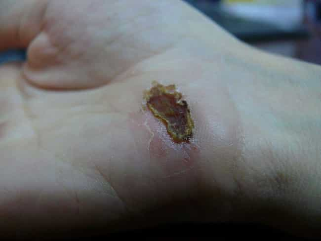 Certain Physical Damage Can In... is listed (or ranked) 1 on the list Here Is What Actually Happens To Your Body If You Get Tetanus