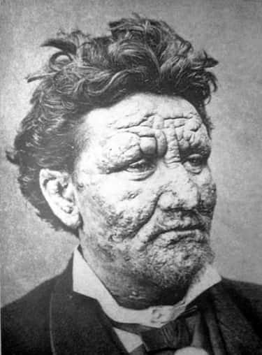Leprosy Causes Deformities And Paralysis