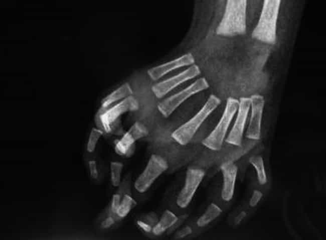Less Than 100 Cases Of Mirror ... is listed (or ranked) 1 on the list Mirror Hand Syndrome Is Just As Fascinating As It Is Strange