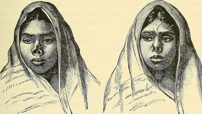 Indian Doctors Grafted Butt Sk... is listed (or ranked) 3 on the list The First Nose Job Took Place In The 6th Century, And There's More About The Surgery You Don't Know