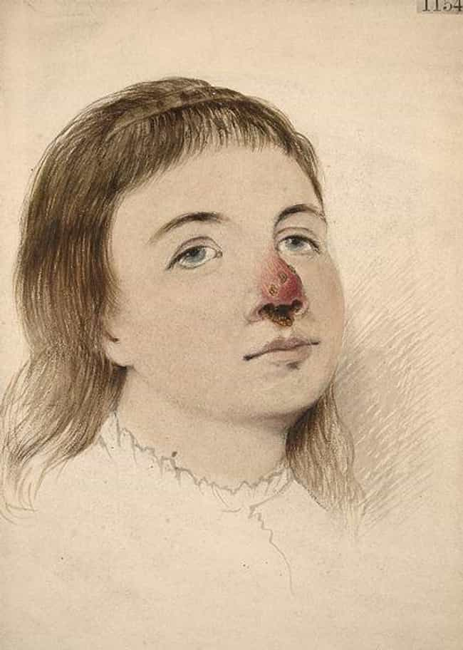 Syphilis Made Nose Jobs Popula... is listed (or ranked) 4 on the list The First Nose Job Took Place In The 6th Century, And There's More About The Surgery You Don't Know