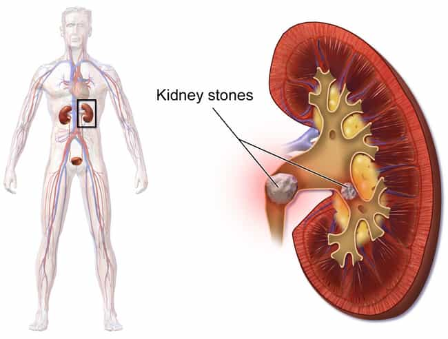 A Blockage In The Urinar... is listed (or ranked) 2 on the list What Happens To Your Body When You Have A Kidney Stone