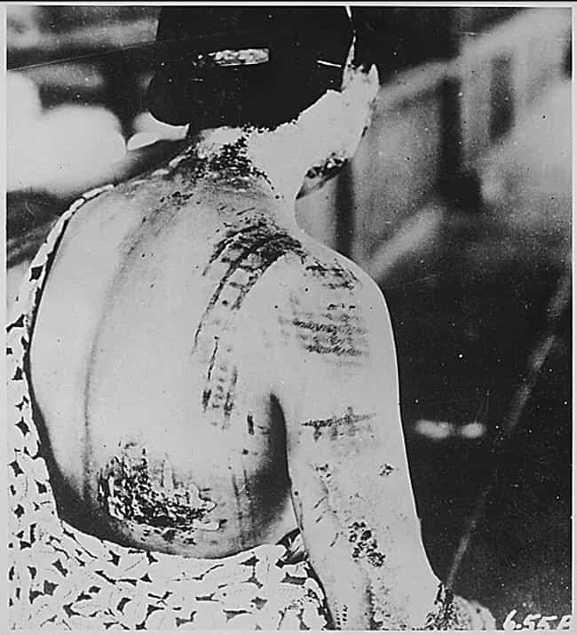 Skin Burned In A Pattern Corre... is listed (or ranked) 1 on the list The Most Haunting Photos Of Hiroshima, Taken In The Aftermath Of The Atomic Bomb
