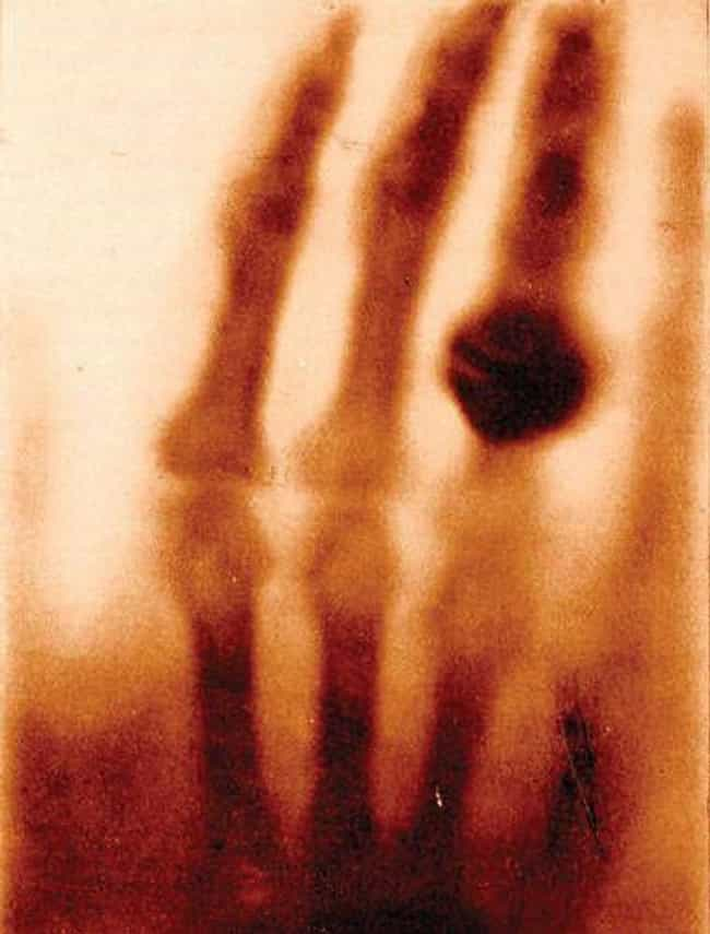 One Of The First X-Rays;... is listed (or ranked) 2 on the list 14 Fascinating Photos Of Historical Firsts