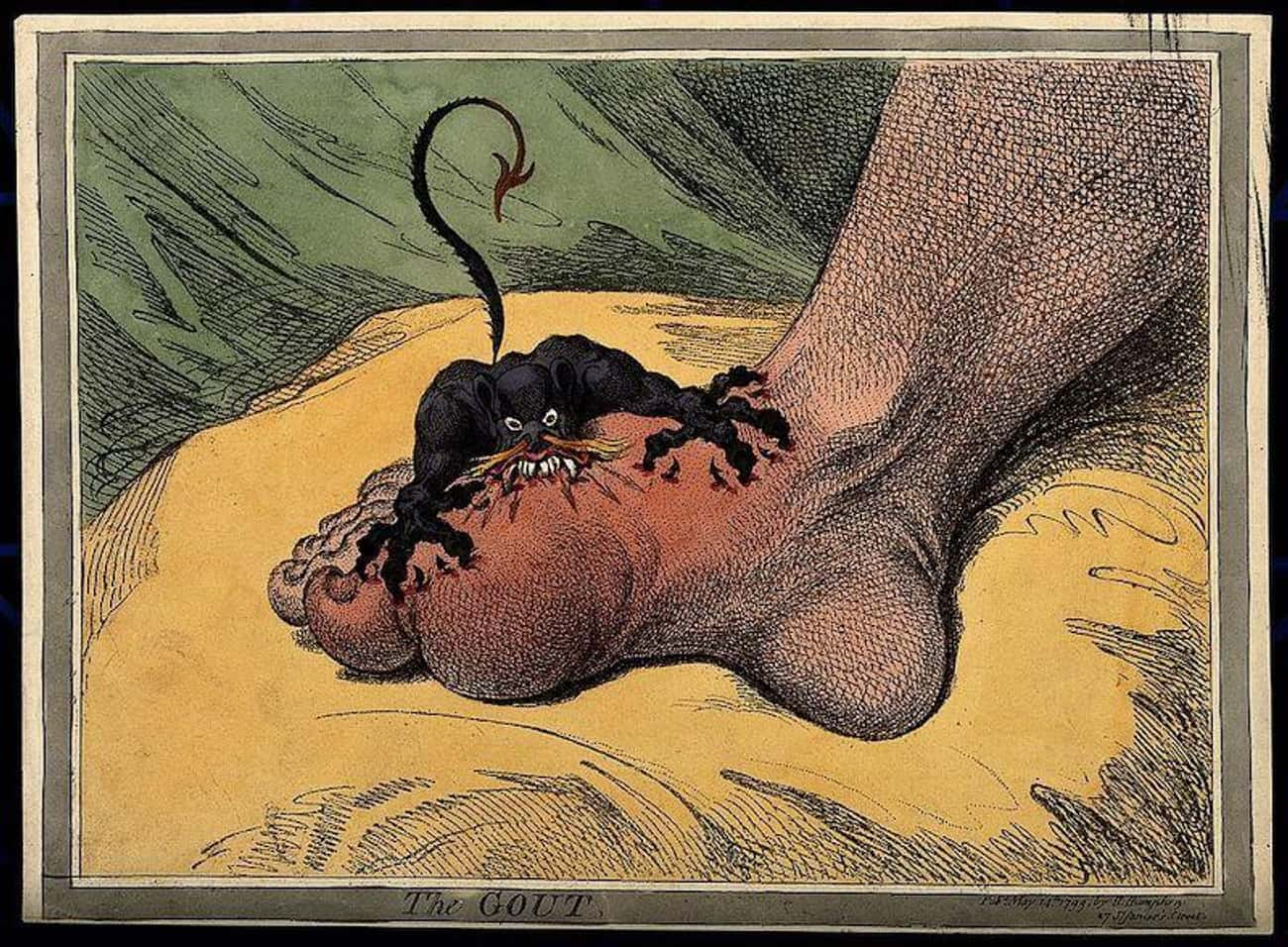 Increasing Levels Of Wealth Ac is listed (or ranked) 2 on the list Why Was There A Gout Epidemic In 18th-Century Britain?