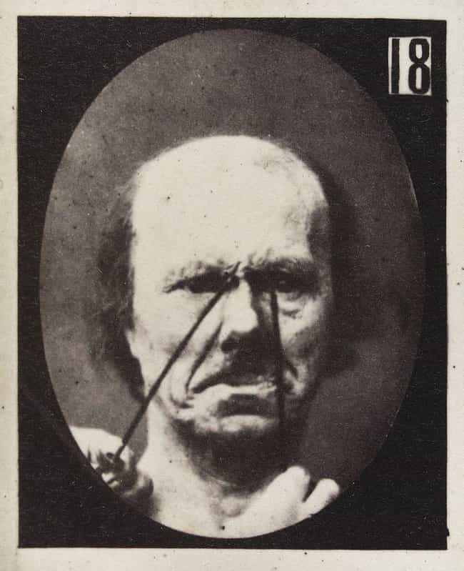 Aggression is listed (or ranked) 3 on the list The Images From This 19th-Century Experiment On Facial Expressions Are Kind Of Creepy