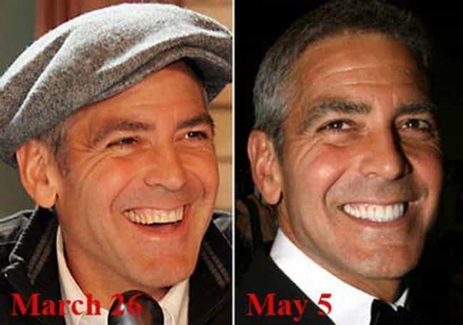 George Clooney Is Listed Or Ranked 3 On The List Celebrities With Fake Teeth