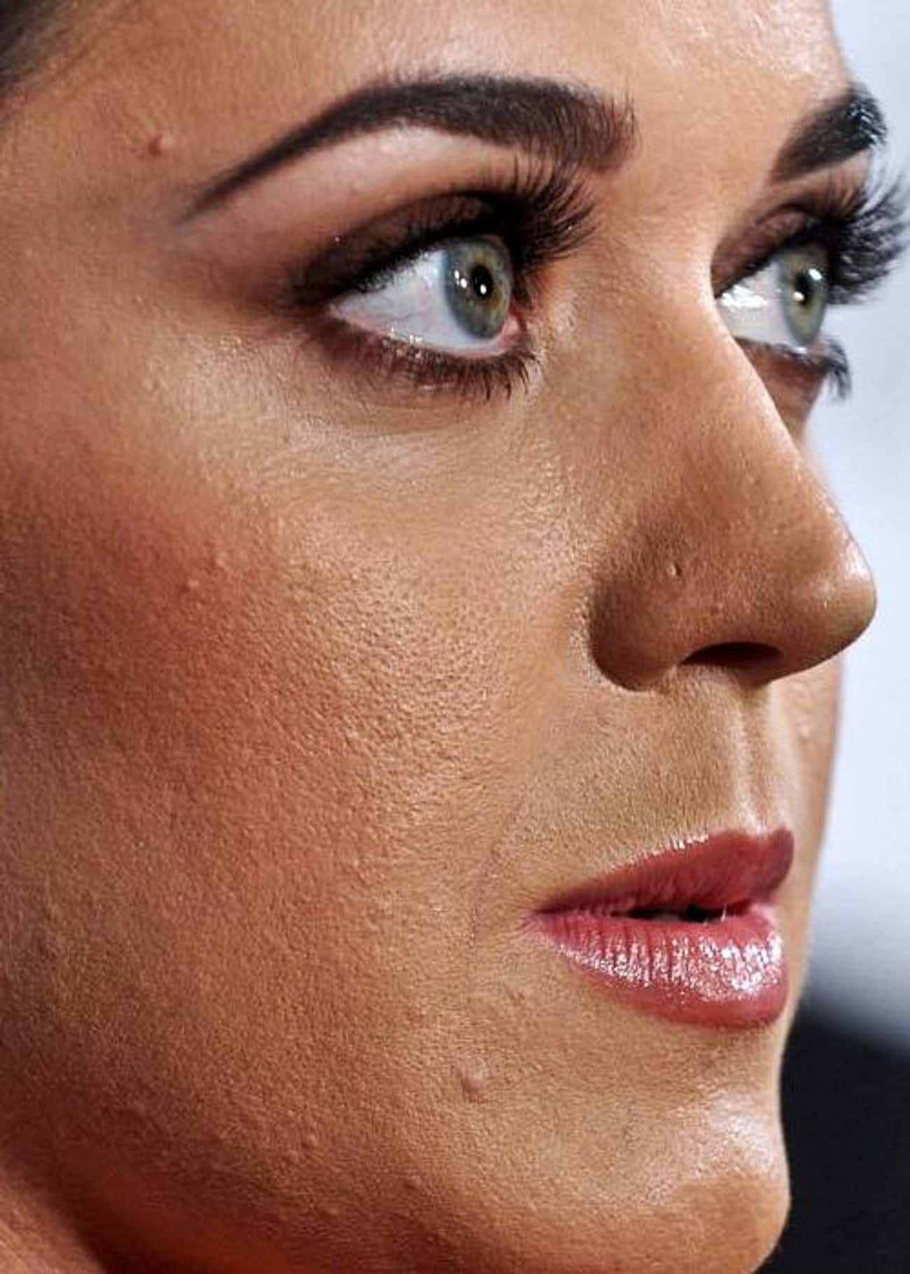 Katy Perry is listed (or ranked) 4 on the list 52 Celebrities Who Have Acne