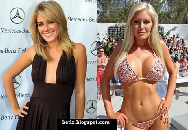 Heidi Montag is listed (or ranked) 3 on the list Celebrities Who Look Worse After Plastic Surgery