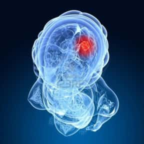 Brain Cancer is listed (or ranked) 23 on the list List of Common Diseases: Most Common Illnesses